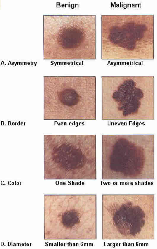 Pictures of UV Cancerous Moles